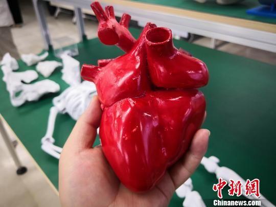 图为3D打印的心脏模型。 魏建军 摄