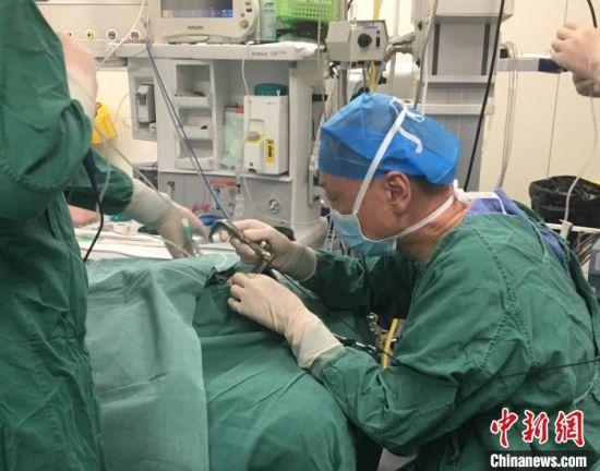 甘肃省妇幼保健院耳鼻喉科主任徐学海为豆豆进行手术。(资料图)甘肃省妇幼保健院供图